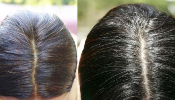 Odsiwiacz dla mężczyzn i kobiet do włosów i brody - ranking i opinie